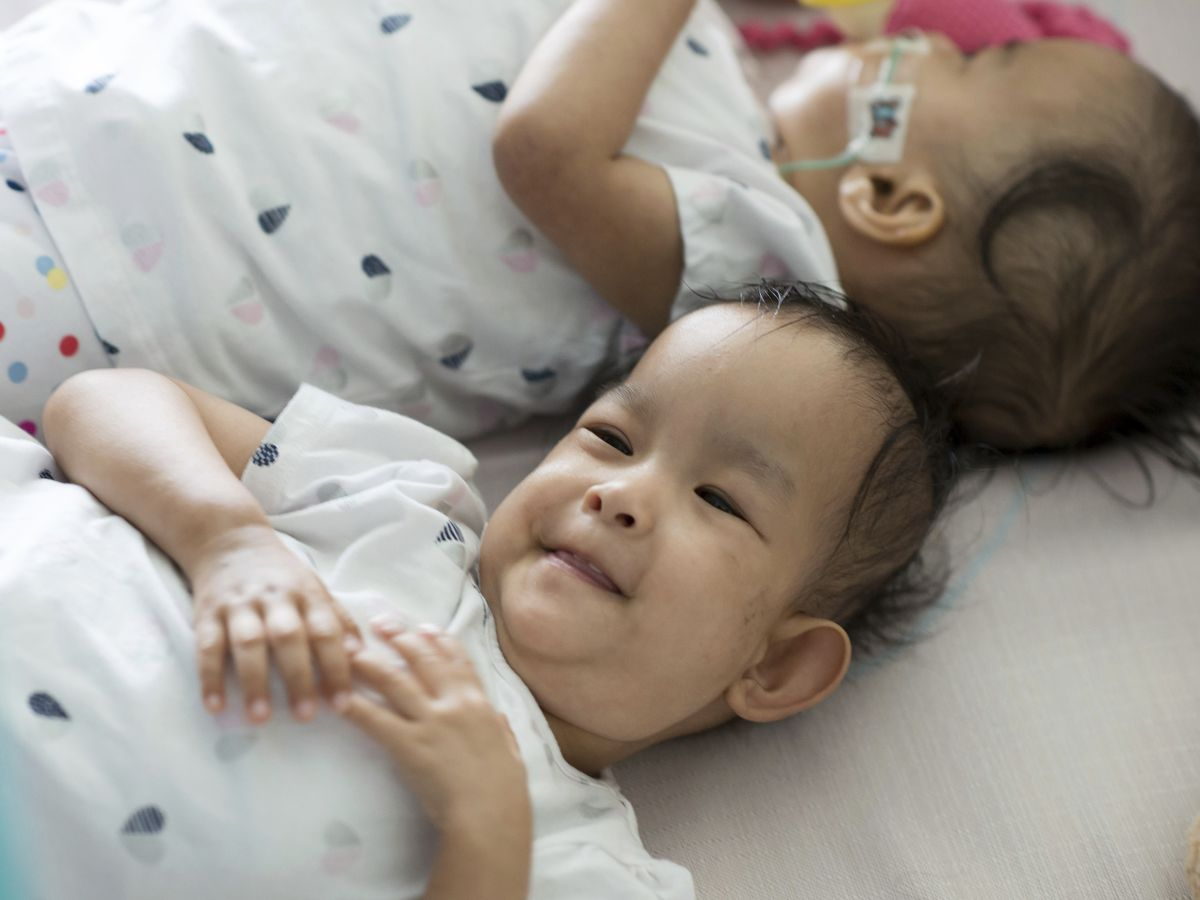 Twins separated by surgery are healing, sticking together