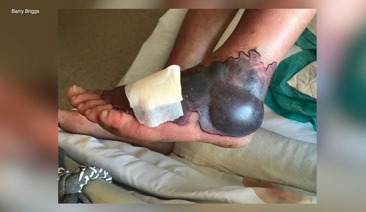 Man contracts rare flesh-eating bacteria while visiting ...