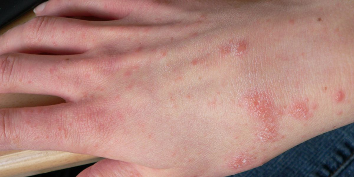 Multiple confirmed cases of scabies at Cumberland County Schools