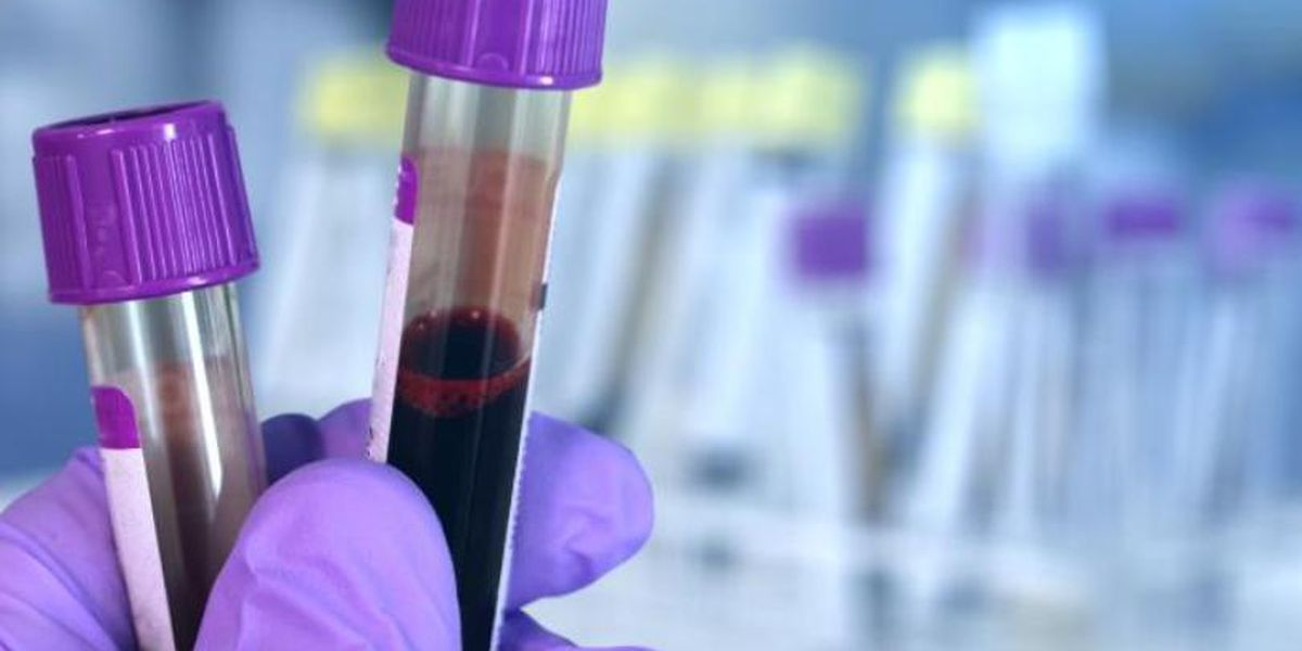 Study says your blood type could make you more susceptible to coronavirus