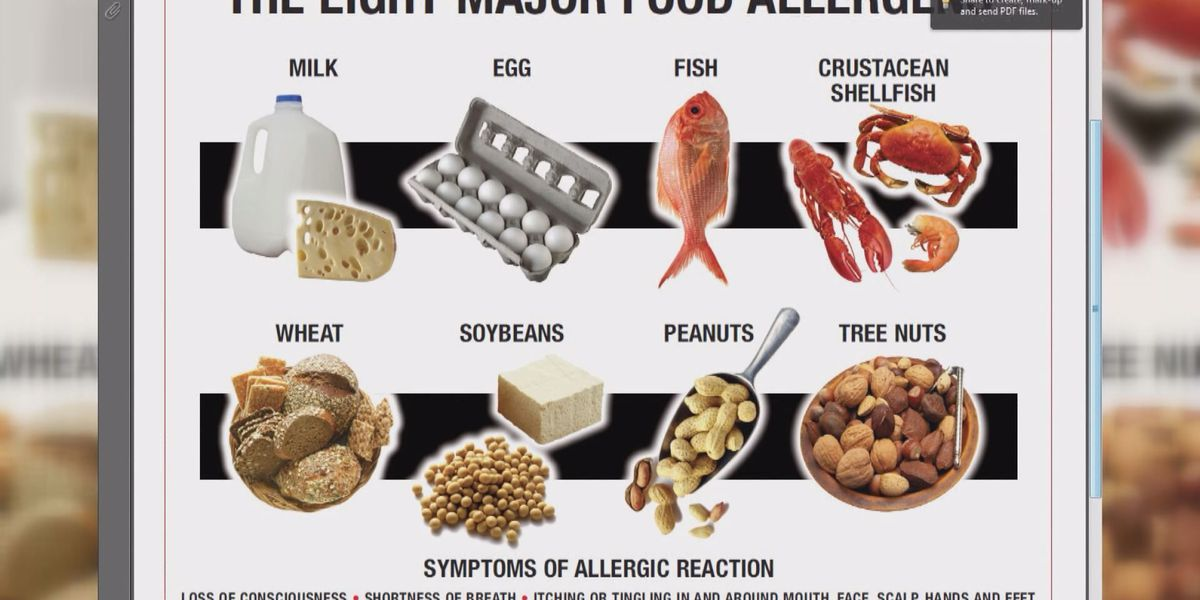 Bill requires restaurants to train on food allergies, symptoms