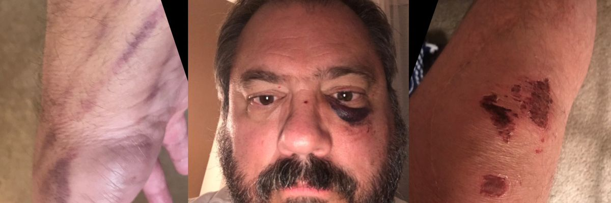 'I went to the ER': Uber driver's assault not included in company's safety report