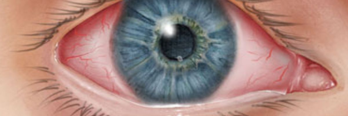 Doctors say pink eye a potential symptom of COVID-19