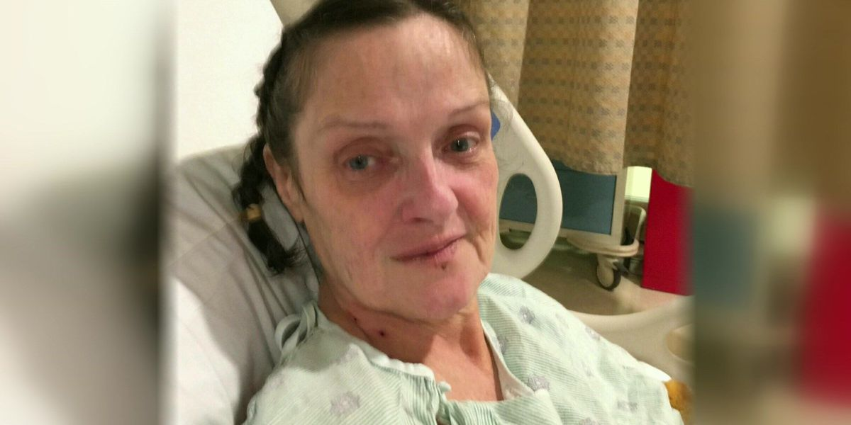 Family desperate for home repairs to help ailing woman calls 12